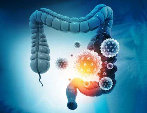 Et si votre Covid long était lié à vos intestins ?
